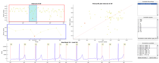 ecg-kit: a Matlab Toolbox for Cardiovascular Signal Processing